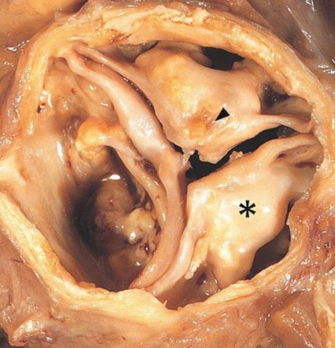 Fig. 1. Forkalket aortaklaff